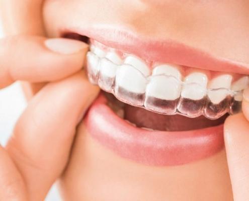 que es la ortodoncia invisible